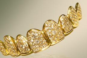 La Dentadura Más Cara del Mundo